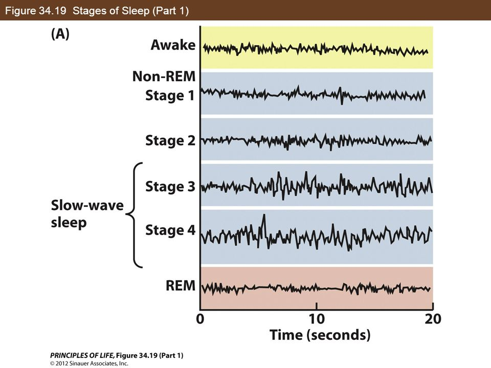 Figure 34.19 Stages of Sleep (Part 1)