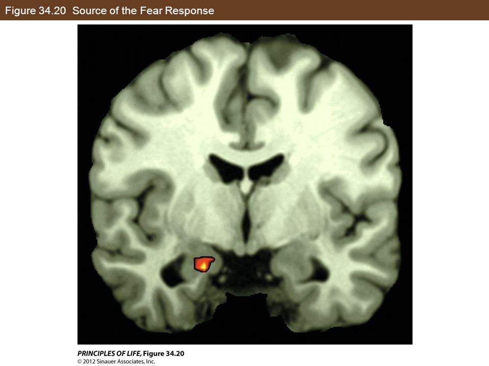 Figure 34.20 Source of the Fear Response