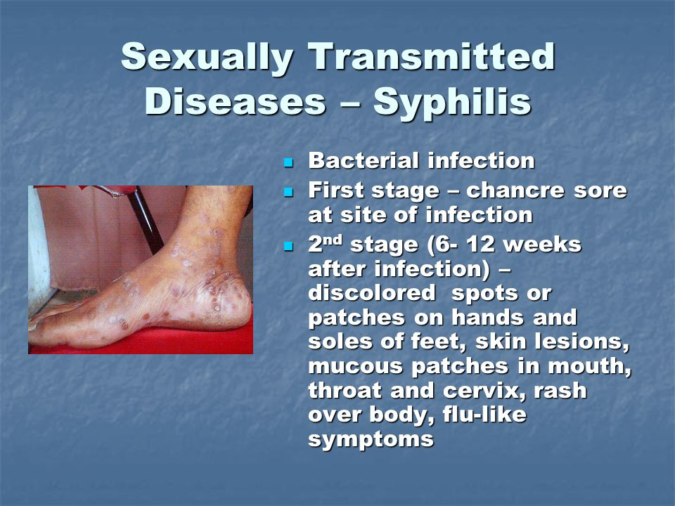 Foot sexually transmitted infections