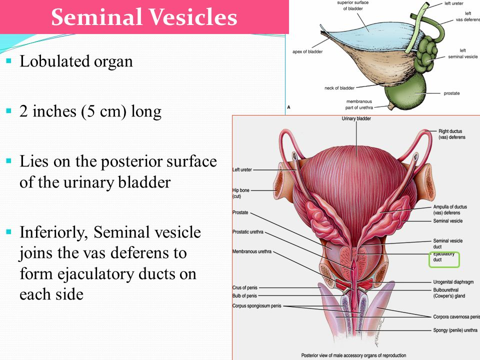Prostate Seminal Vesicle And Ejaculatory Duct Ppt Video Online