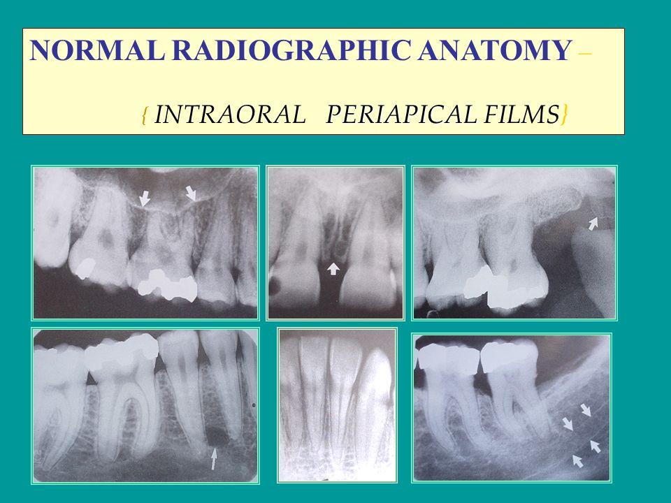 Normal Anatomical Radiographic Landmarks Ppt Video Online Download
