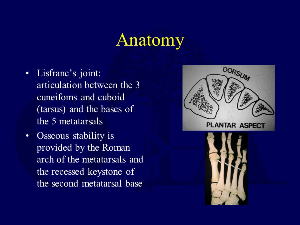 Fractures And Dislocations Of The Mid Foot Including Lisfranc