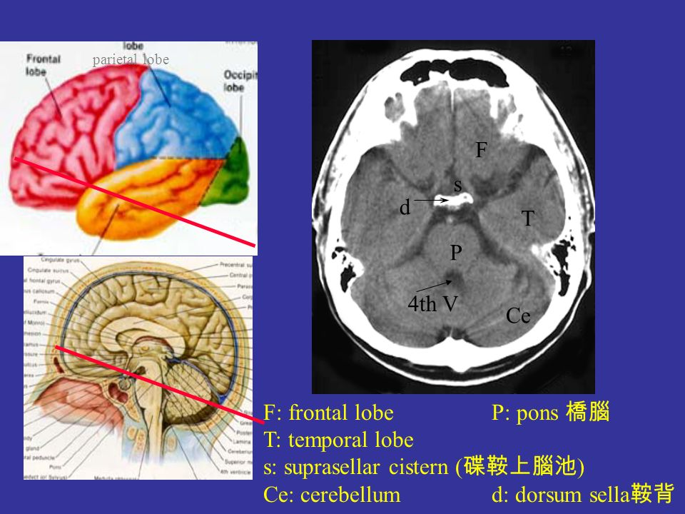 Brain Ppt Video Online Download