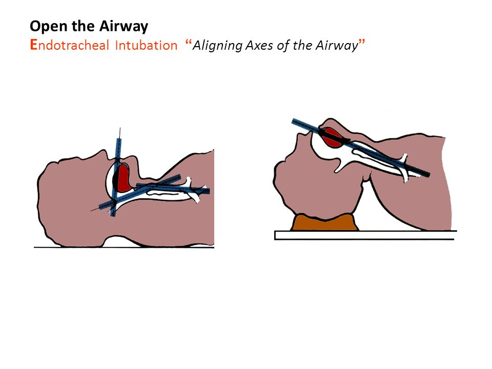 Facial fractures. - ppt video online download
