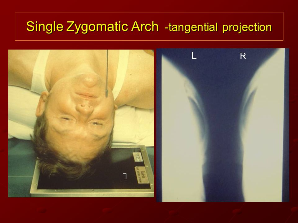Single Zygomatic Arch -tangential projection