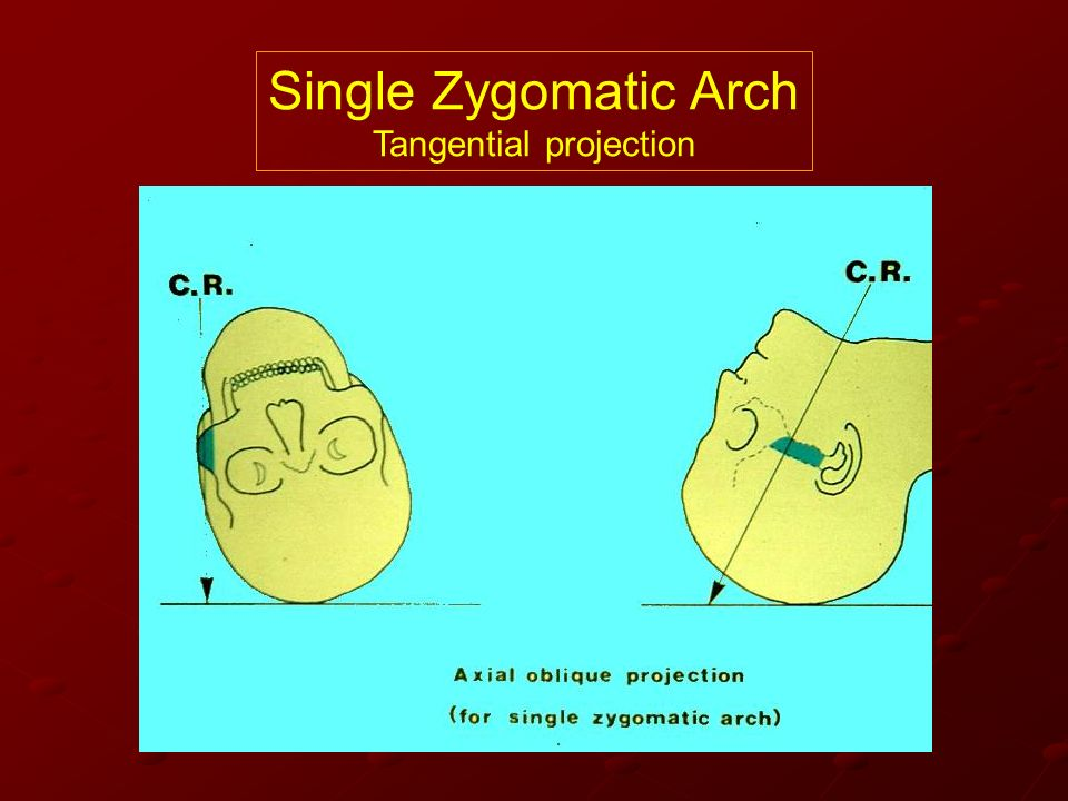 Tangential projection
