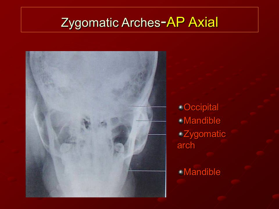 Zygomatic Arches-AP Axial