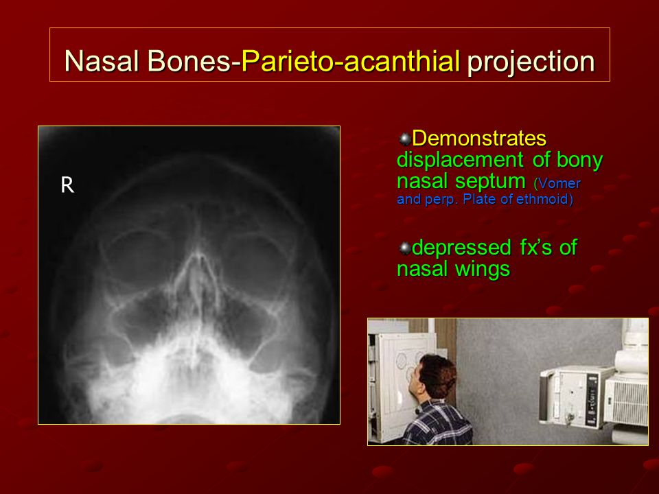 Nasal Bones-Parieto-acanthial projection