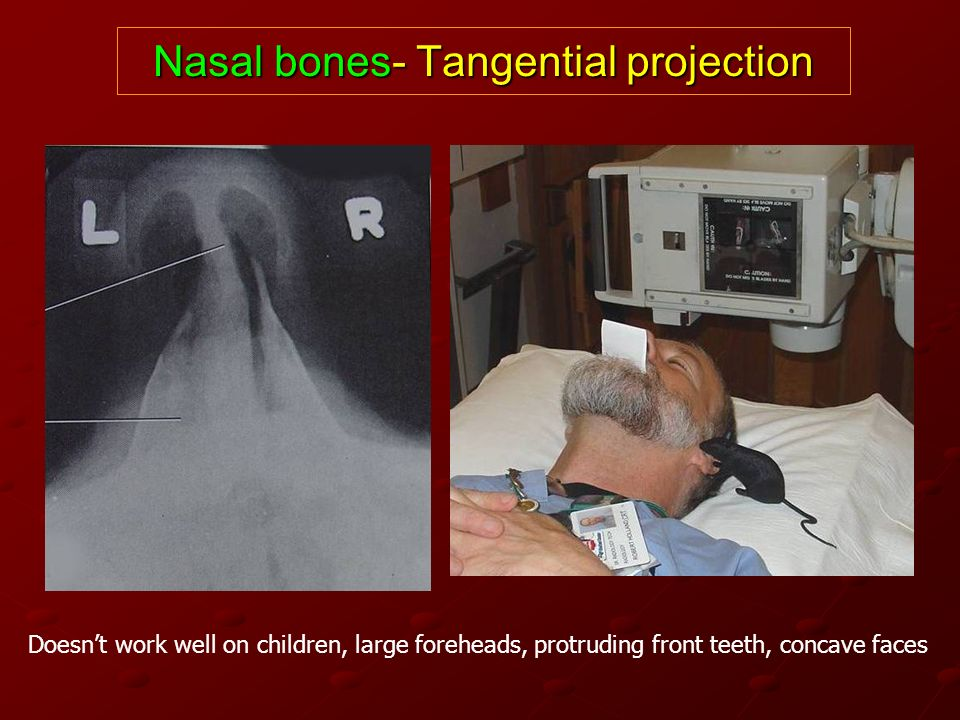 Nasal bones- Tangential projection