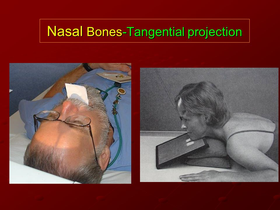Nasal Bones-Tangential projection