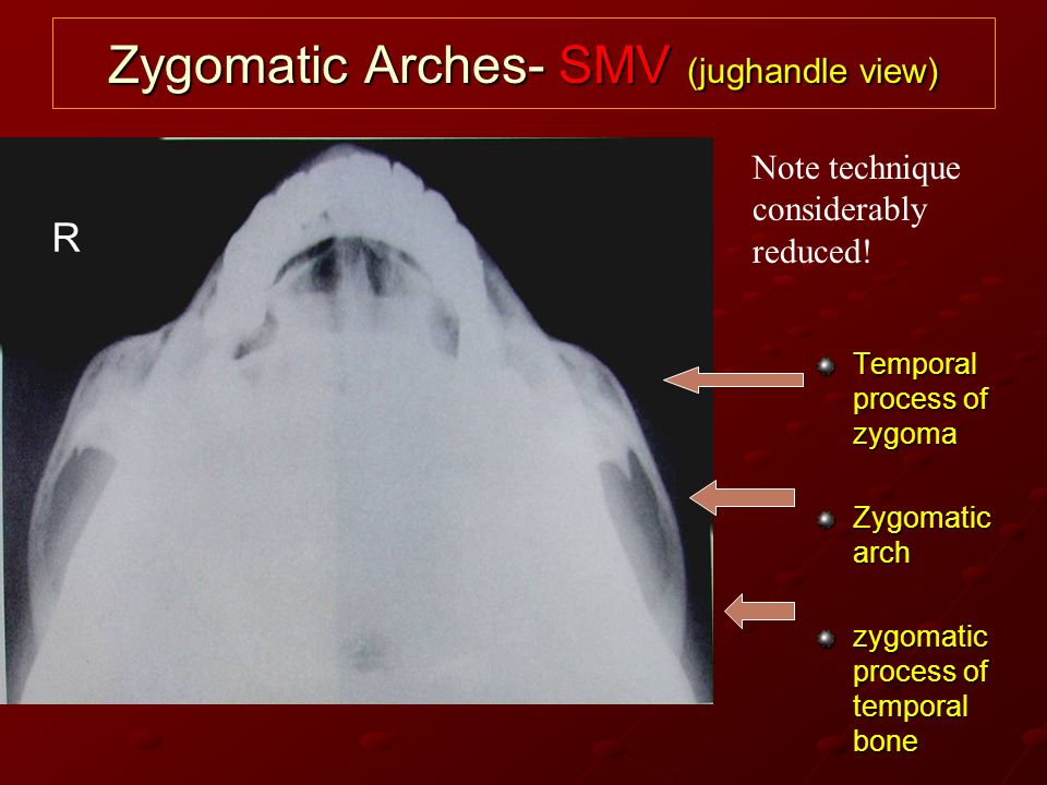 Zygomatic Arches- SMV (jughandle view)