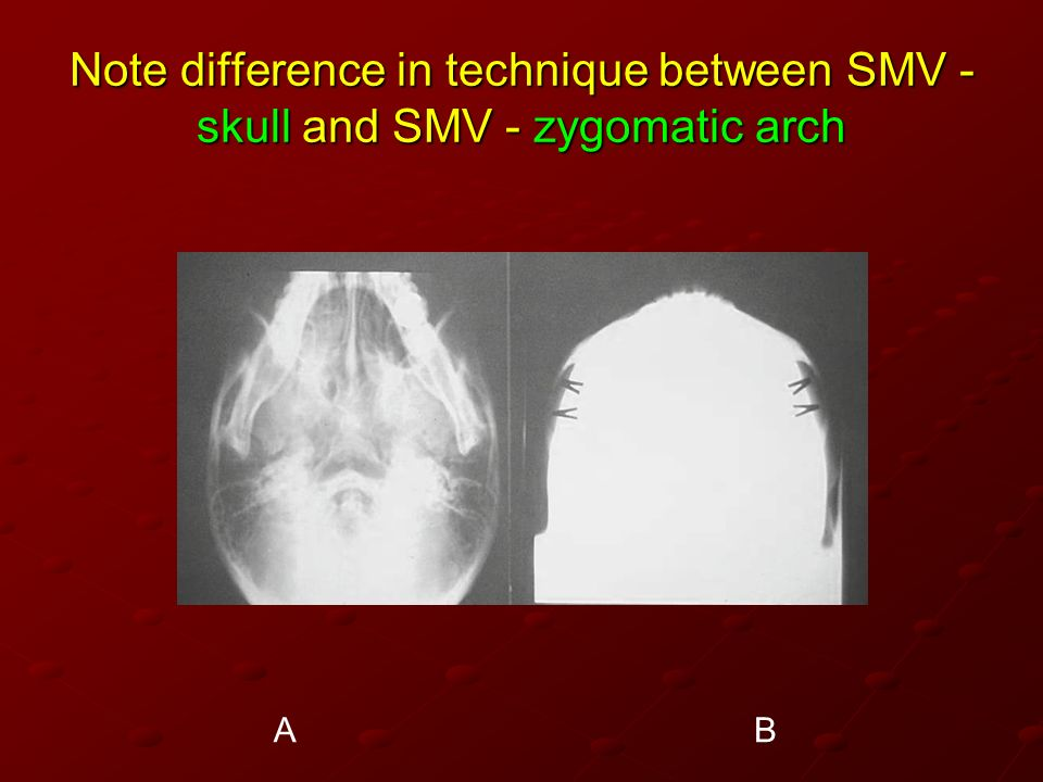 Note difference in technique between SMV - skull and SMV - zygomatic arch