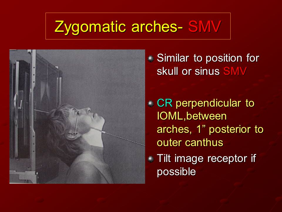 Zygomatic arches- SMV Similar to position for skull or sinus SMV