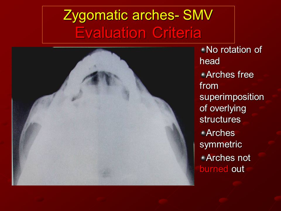 Zygomatic arches- SMV Evaluation Criteria