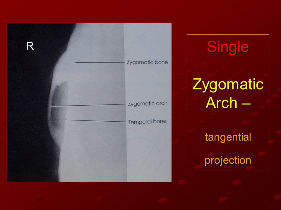 Single Zygomatic Arch – tangential projection