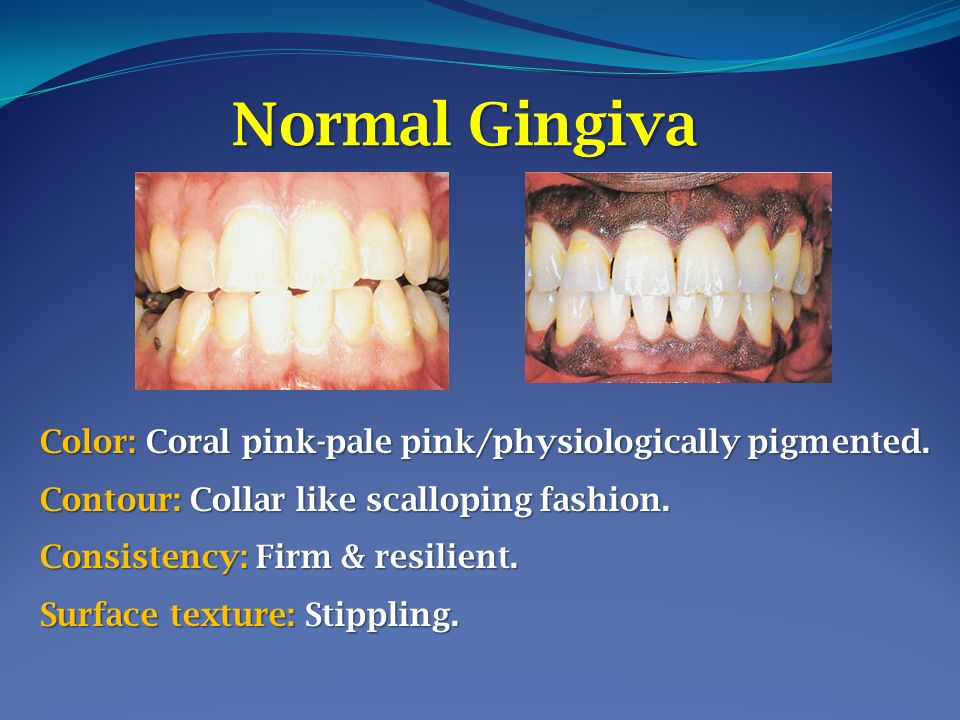 Lecture 7 Clinical Features 0f Gingivitis Presented By Dr Ppt