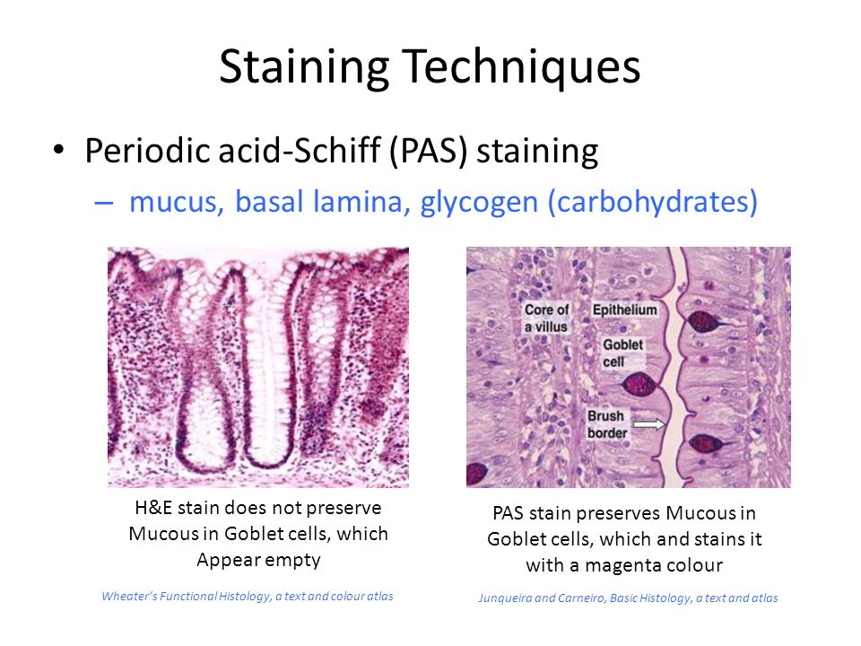 Basic staining techniques ppt video online download.