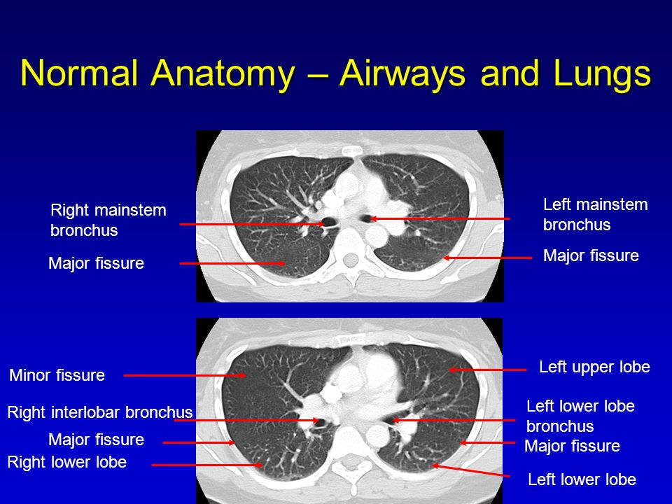 Introduction To Computed Tomography Of The Chest And Paranasal