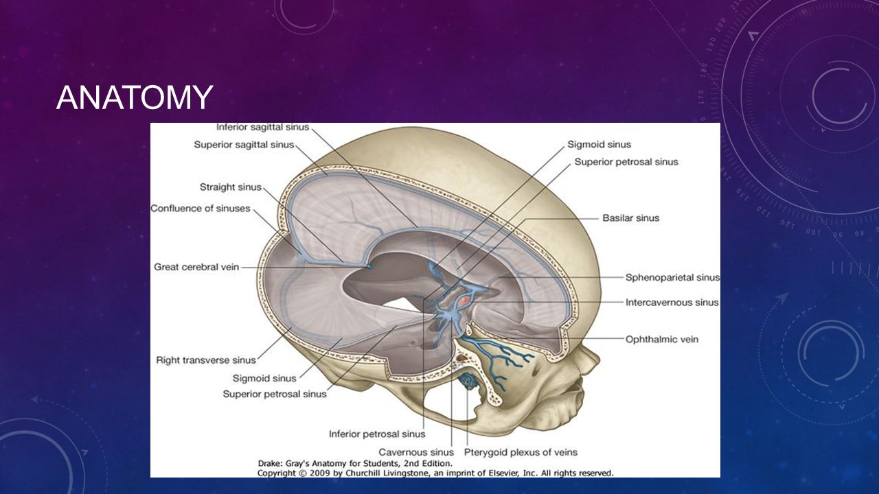 Cerebral venous sinus thrombosis - ppt video online download