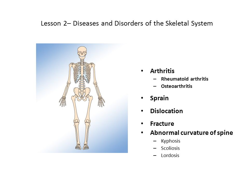 Lesson 2– Diseases and Disorders of the Skeletal System